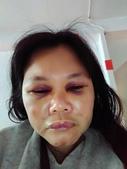 社子街146巷胡姓惡男暴力傷害:表姐被重毆後第3天的(107/1/24日)臉傷照