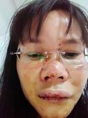 社子街146巷胡姓惡男暴力傷害:107/1/22表姐在新光醫院急診'臉部清潔後腫傷照之一