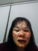 社子街146巷胡姓惡男暴力傷害:表姊被胡嫌重毆受傷現場照